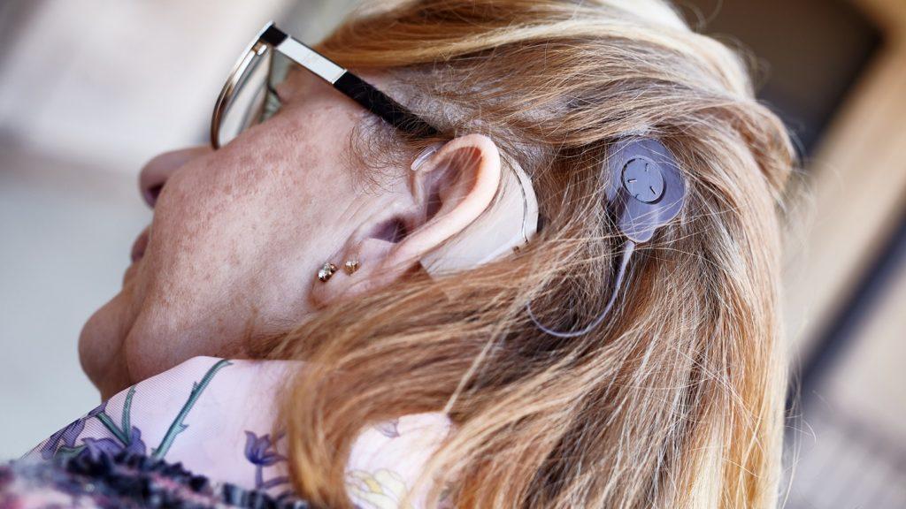 Nueva tecnología implantes sordera 2
